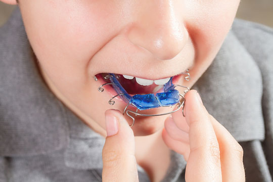 Orthodontist inserting a tooth-aligning appliance